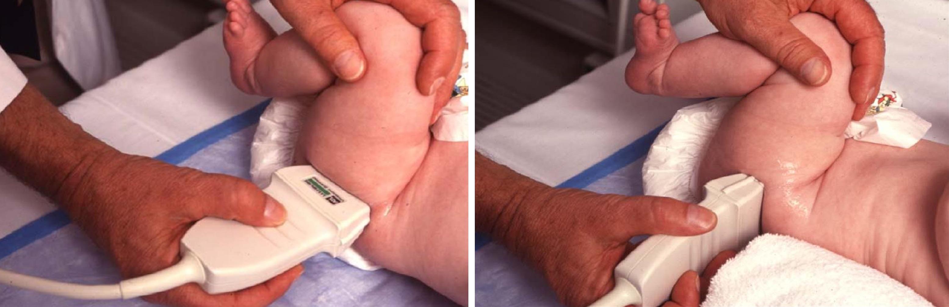 Изображение - Протоколы узи суставов у детей Pop-srez