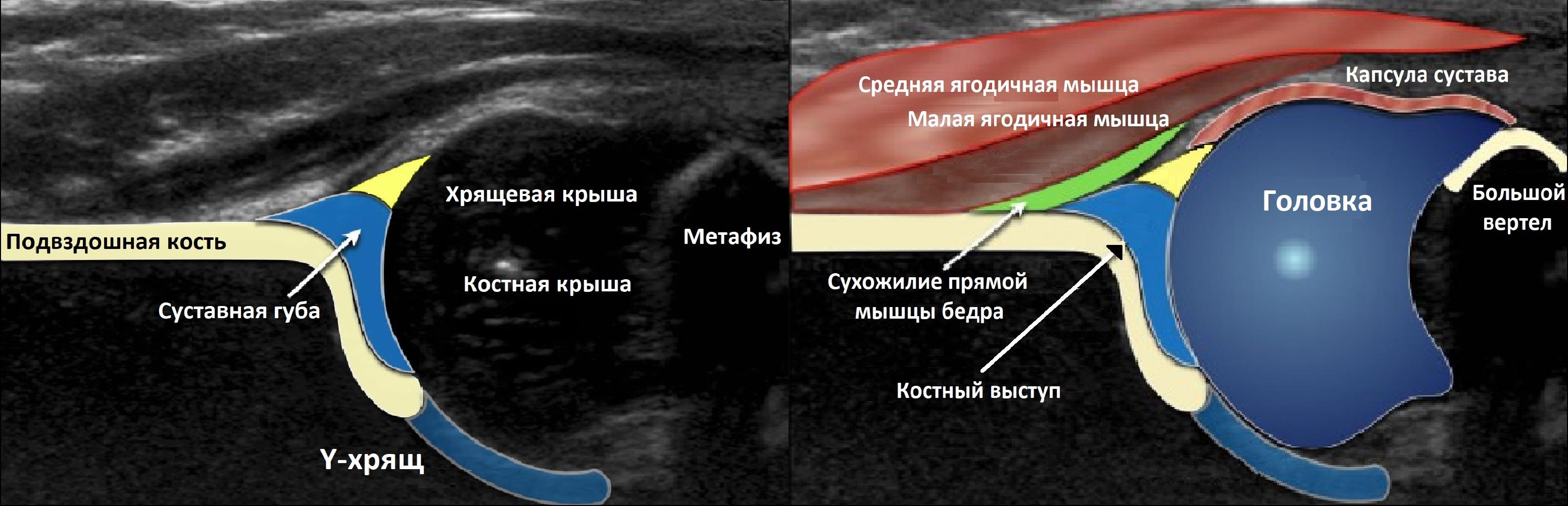 Изображение - Протоколы узи суставов у детей Tbs-7