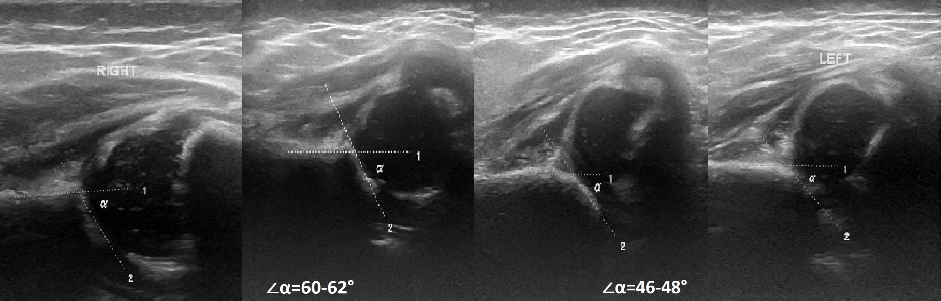 Измерить угол тазобедренный сустав