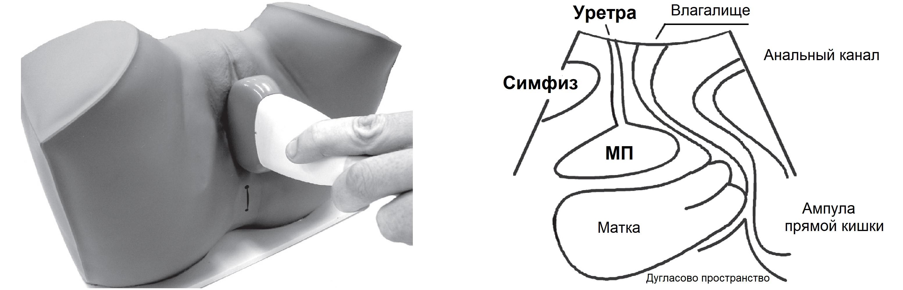 Измерить объем мочевого пузыря по узи