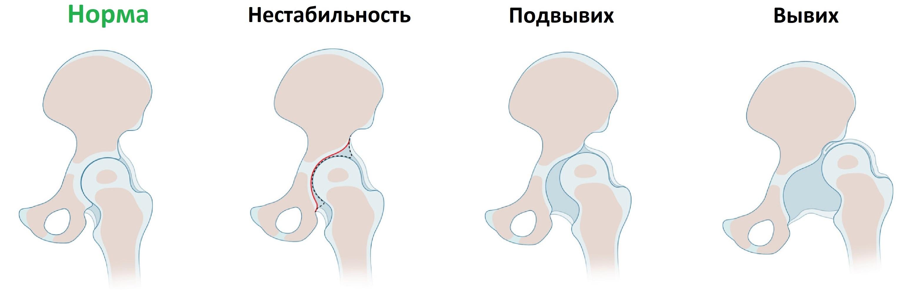 Изображение - Протоколы узи суставов у детей Displaziya-2