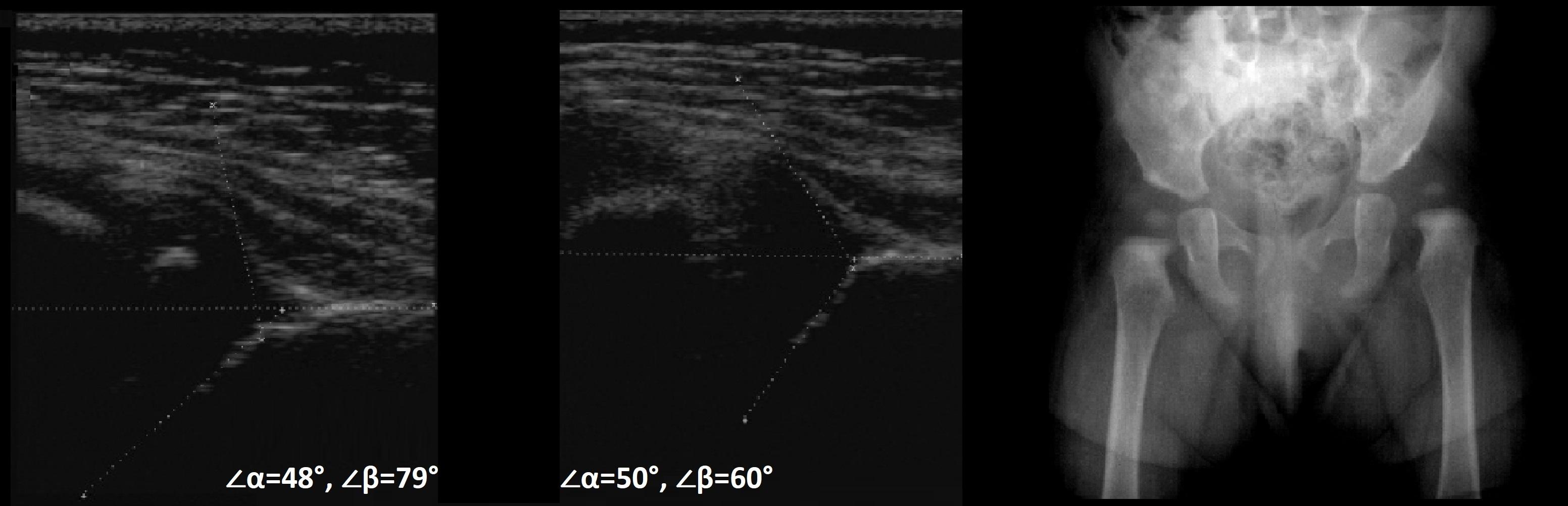 Измерить угол тазобедренный сустав thumbnail